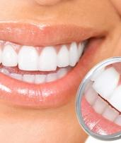 $99 for Dental Scale, Clean and Exam, or $299 for Zoom In-Chair Teeth Whitening at City Dental Care at Neo Spencer