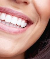 In-Chair LED Teeth Whitening Session - One ($39) or Three ($99) at Absolutely Fabulous Clinic (Up to $447 Value)