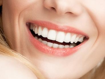 In-Chair Cosmetic Teeth Whitening - One ($39) or Three Sessions ($99) at Exhale Body Rejuvenation (Up to $897 Value)