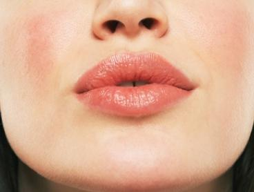 Dermal Filler for Lips or Cheeks: 0.5ml ($199) or 1ml ($299) at Skin First Laser Treatment Experts, Brighton-Le-Sands
