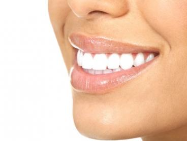 In-Chair Teeth Whitening Treatment - 30 Minutes ($49) or One Hour ($69) at Dermazone Clinics, CBD (Up to $179 Value)