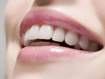 Full Dental Crown: One ($599), Two ($1,099) or Three ($1,499) at Eastwood Dental Clinic