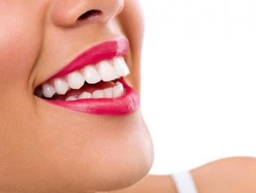 In-Chair Venus Teeth Whitening with Dental Exam and Two X-Rays for One ($289) or Two People ($549) at Dapto Smile Dental