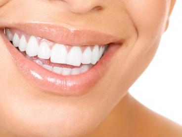 $89 for a Dental Exam with Scale, Clean and Polish Plus Fluoride Treatment at Beyond Smiles Dental, Claremont