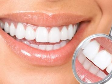 Tooth Filling - One ($119), Three ($339) or Four ($449) (+ $45 Consult Fee) at Radiant Smiles Dental Care, Two Locations