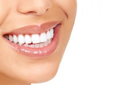 30-Minute In-Chair LED Teeth Whitening - One ($29), Two ($49), Four Treatments ($89) at Clara Beauty (Up to $596 Value)