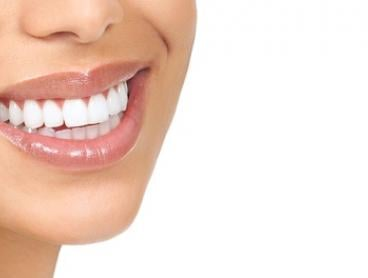 Teeth Whitening: 30-Minute ($59) or One-Hour Session ($79) at Skin First Laser Treatment Experts (Up to $400 Value)