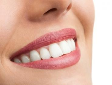 $2,999 for Invisalign® i7 or $4,999 for an Invisalign® Lite Package (+ $500 for Retainers) at Dental on Blackwood