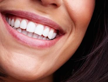 30-($99) or 60-Minute In-Chair Teeth Whitening Treatment ($149) at Gloss Hair Boutique (Up to $299 Value)