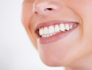 LED Teeth Whitening for One ($49) or Two People or Two Sessions ($89) at The Skin Co. (Up to $420 Value)