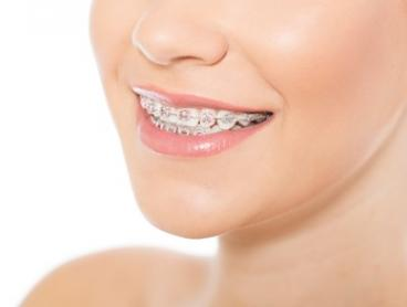 Orthodontics Package with Metal Braces for One ($4999) or Two ($9499) People at Good Choice Dental