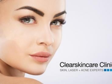 $79 Lift, Restore. Neck and Chin Skin Tightening and Firming at Clearskincare Clinics, 43 locations (Val: $204)