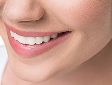 I-Smile Teeth Whitening Sessions in Benowa- Get One for $39, Two for $69, or Three for $99 (Valued Up To $897)