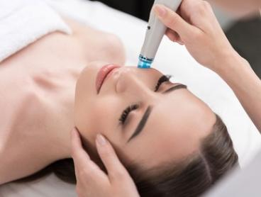 Hydrodermabrasion for the Face ($29) Plus Neck ($39) and Décolletage ($49) at Aysan (Up to $169 Value)