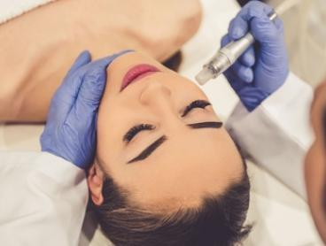 Microdermabrasion: One ($45), Two ($90) or Three Sessions ($135) at Star Medispa (Up to $270 Value)