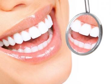 $99 for Dental Exam, Check-Up, Scale, Polish and Fluoride Treatment at Advanced Dental Services, Kiama