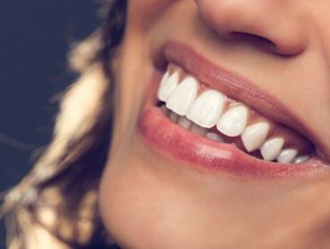 $79 for Dental Exam Package at First Dental Studio