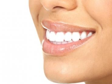 Teeth Whitening - One ($65) or Two Sessions ($129) at Peach & Co Beauty and Laser Clinic (Up to $550 Value)