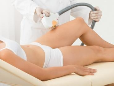 Six Sessions of SHR Hair Removal on Two ($149), Three ($190) or Four Areas ($220) at Urban Beauty (Up to $3,600 Value)