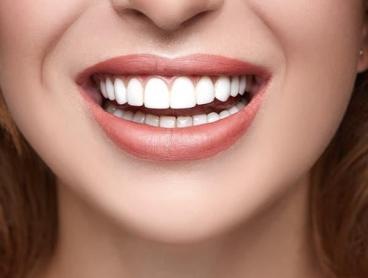 Brighten Your Smile with Diamond Teeth Whitening in Nerang