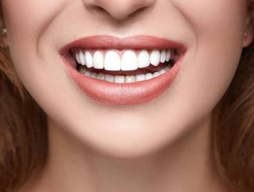 30-Minute Teeth Whitening Sessions in Bondi Junction