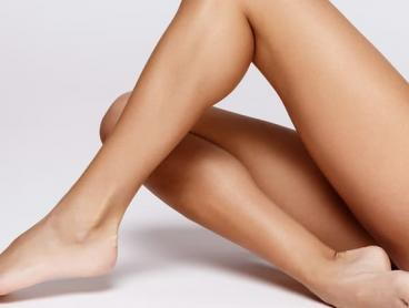 Laser Hair Removal on Four Areas in Castle Hill